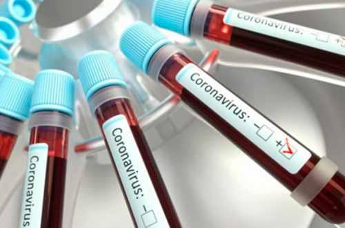 За добу на Полтавщині – 166 нових випадків захворювання на COVID-19
