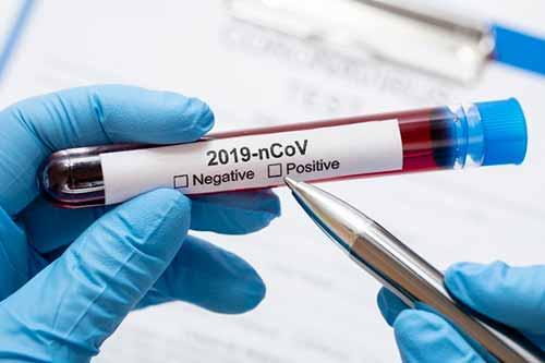 На Гребінківщині додався ще один випадок коронавірусу